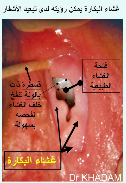 ����� ���� �������: L'hymen HYMEN_COM_ARABE.jpg