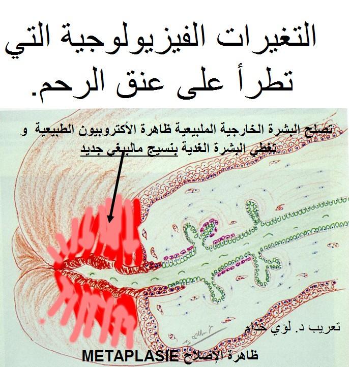التهابات المهبل الالتهاب المهبلي التهاب