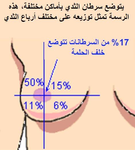 الثدى للاناث ex%20sein%20distrub.
